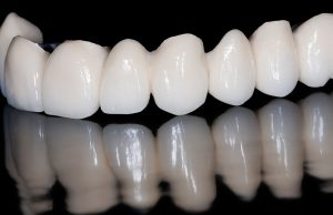 Dental Bridges & Crowns Bremerton
