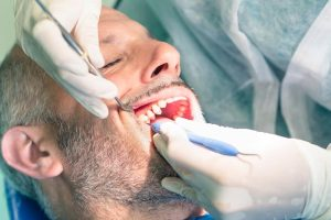 Periodontics Surgery in Bremerton