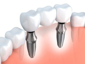 Dental Implants Bremerton