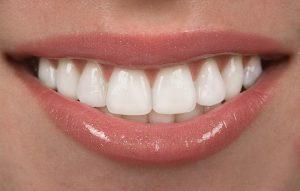 Restorative Dentistry Bremerton