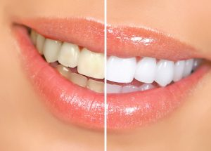 Teeth Whitening in Bremerton